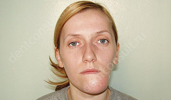 На фото показан односторонний вывих челюсти