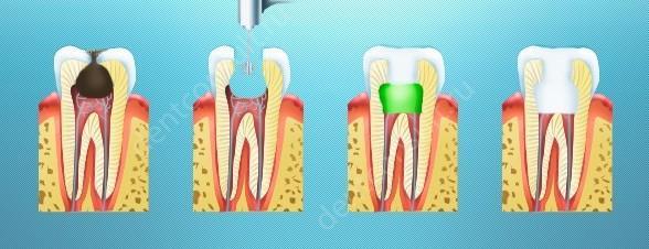 На фото показан биологический метод лечения пульпита