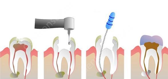 На фото показан хирургический метод лечения пульпита