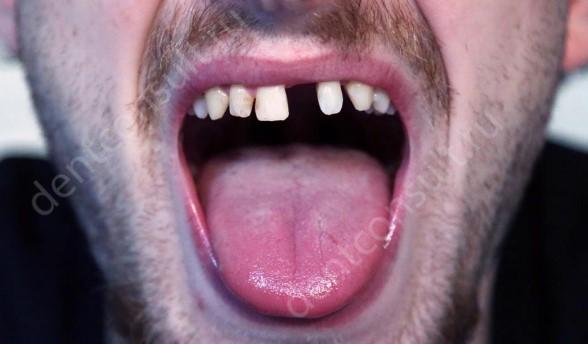 Что делать, если выпал зуб?