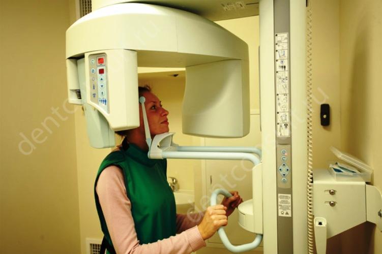 Рентген в стоматологии: насколько безопасно делать снимки?