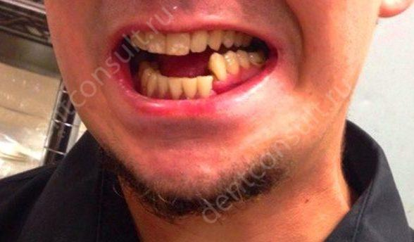 Фото: перелом челюсти