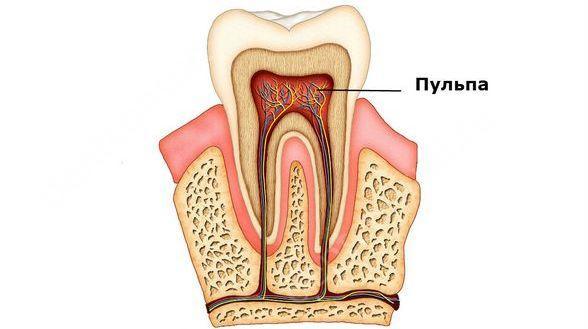 Пульпа – это пучок сосудов и нервов зуба.