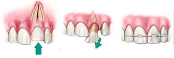 Фото: реплантация зуба после травмы