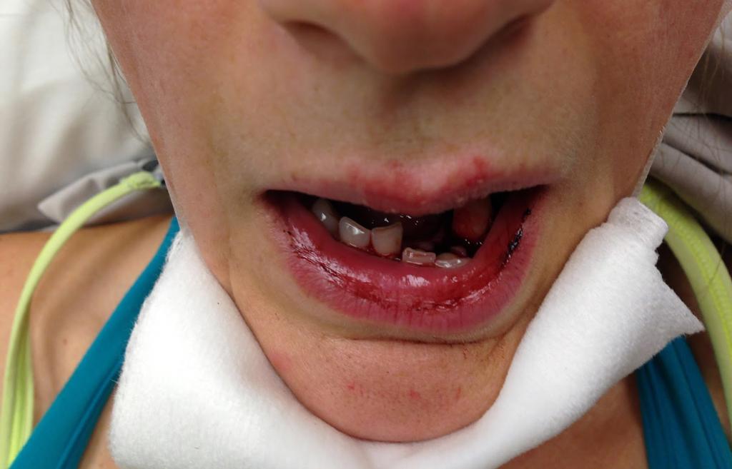 выбиты зубы