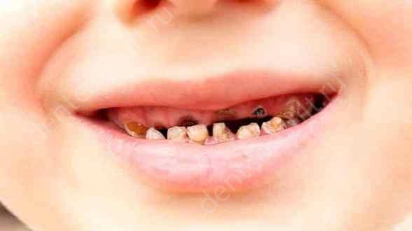 гниют зубы у детей