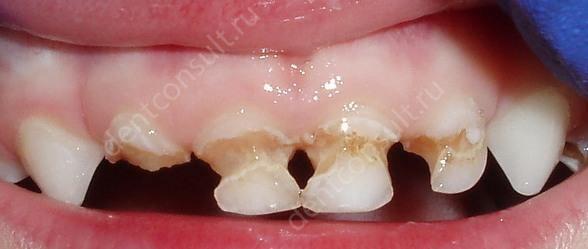 Фото: Разрушение зубов у детей