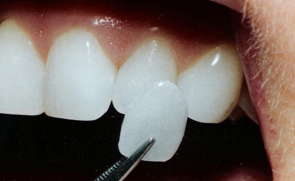 Виниры на зубы – микропротезы для безупречной улыбки