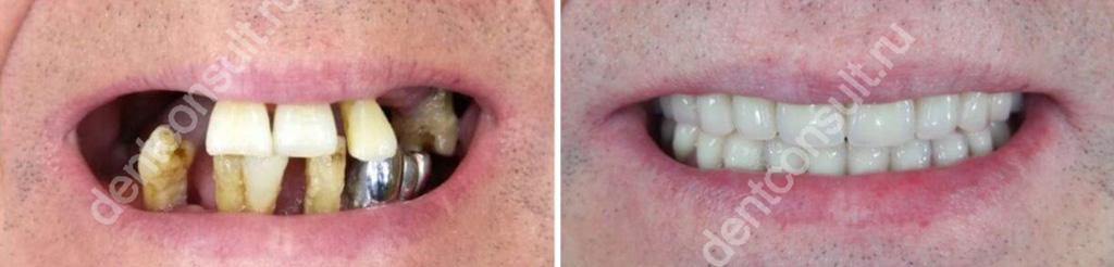 Фото «до» и «после» базальной имплантации