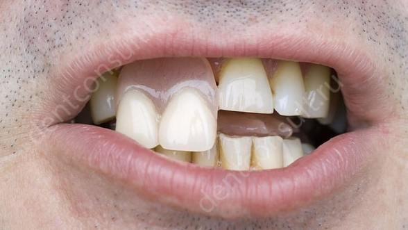 Зубные импланты: аргументы за и против
