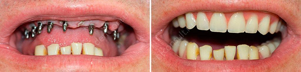 имплантация до и после