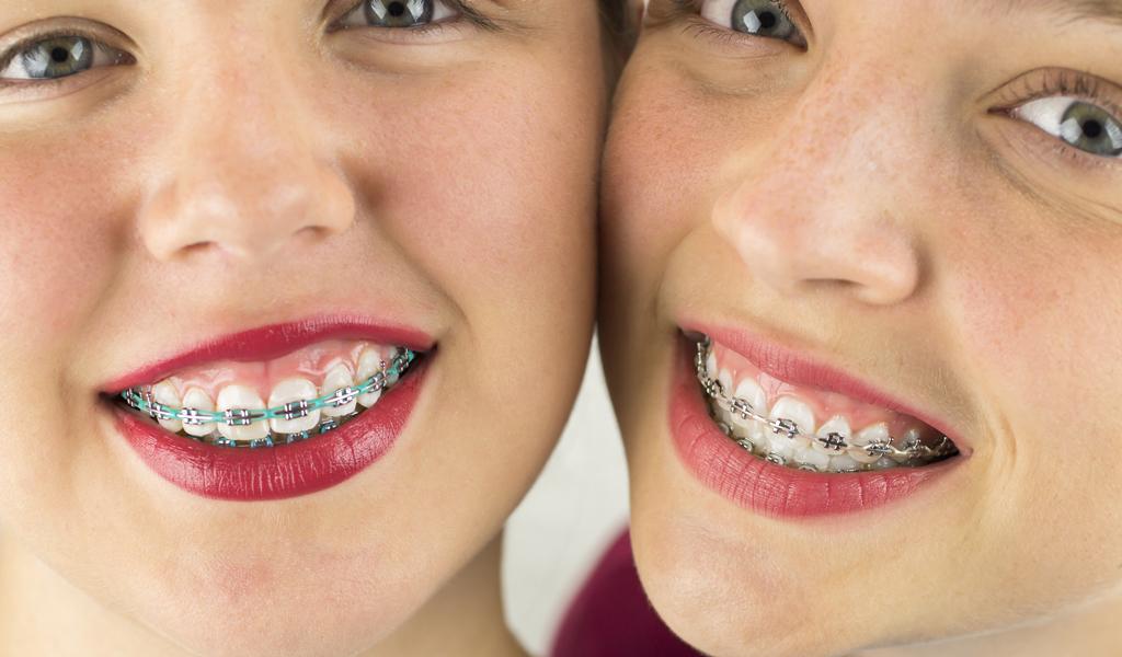 Так выглядят металлические брекеты. Фото позволяет увидеть, насколько они заметны на зубах