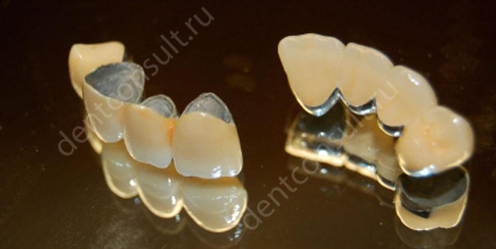 Стоматология протезирование зубов металлокерамика