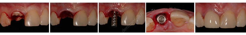 Этапы одномоментной имплантации