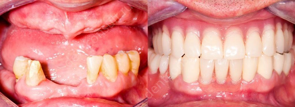 Бюгельный протез до и после