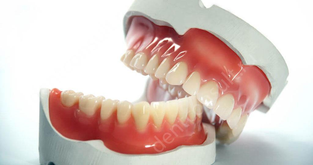 Протезирование одного зуба без обточки соседних зубов