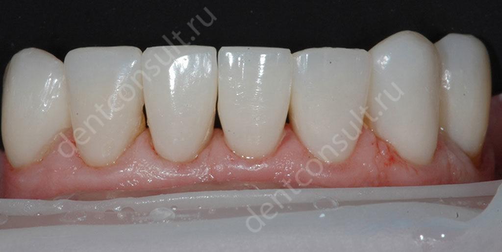 Нижние-передние-зубы