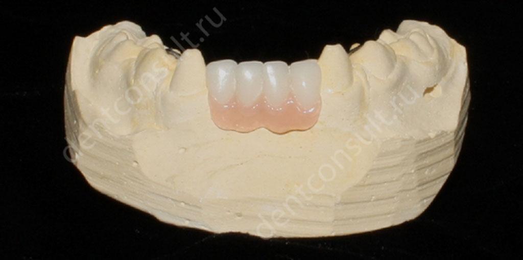 бюгельные-на-передние-нижние-зубы