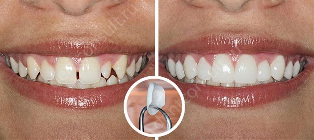 Люминиры-на-зубы