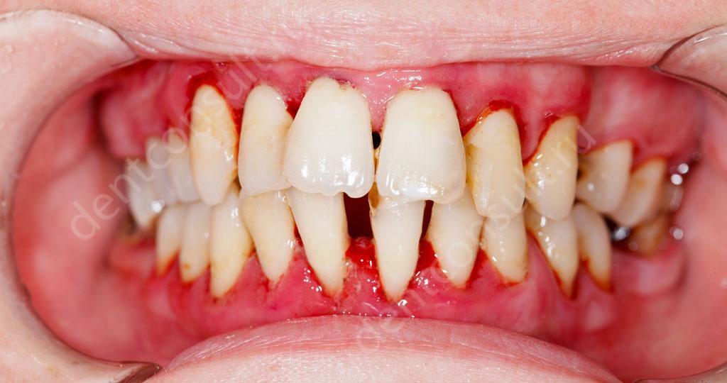 Нужно ли удалять зубы при пародонтите