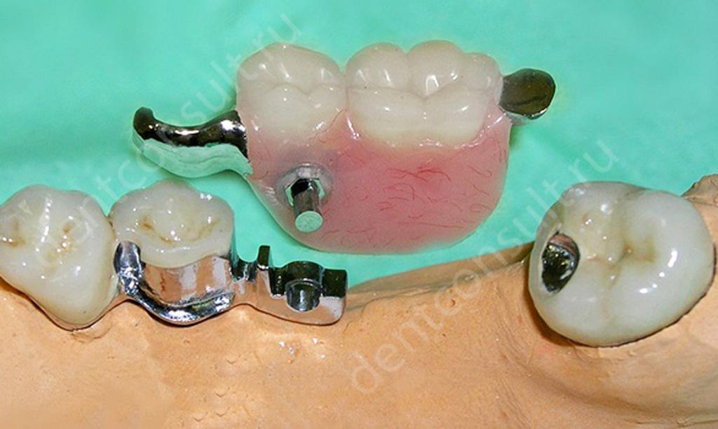 Съемный-зубной-протез-на-замках
