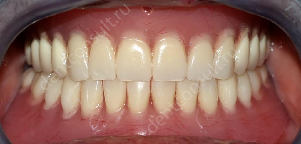 Акриловые зубные протезы что это такое