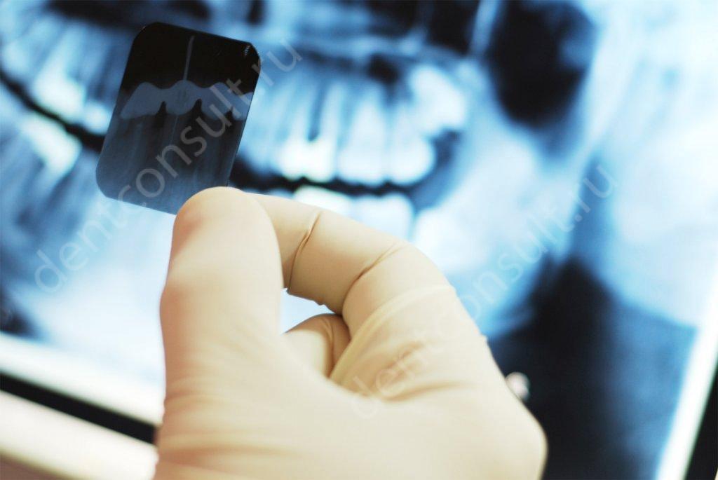 Опасны ли рентгеновские снимки