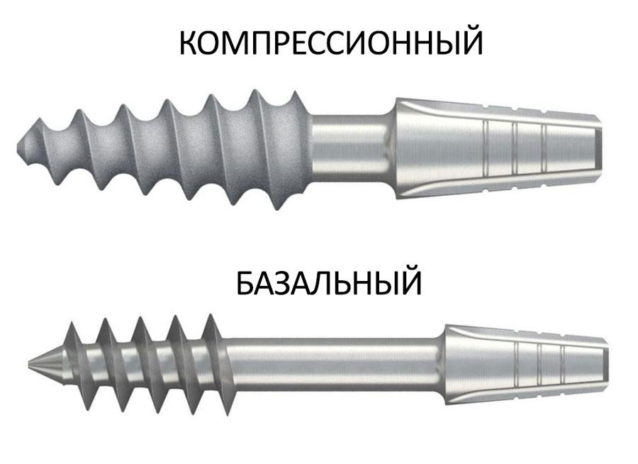 Компрессионные и базальные импланты