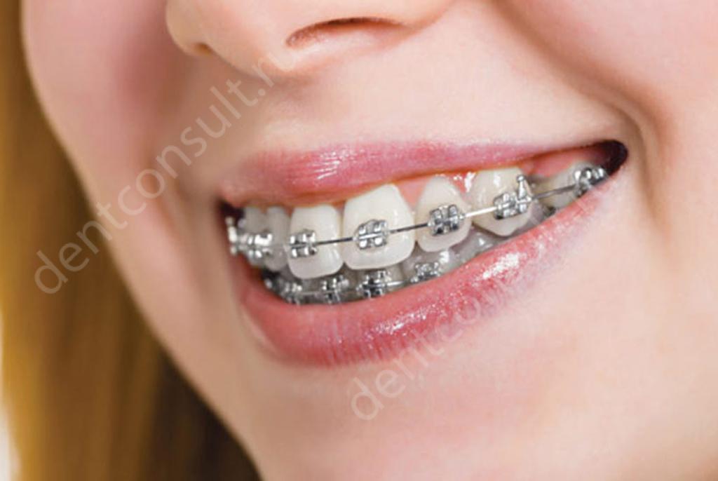 Сколько стоят брекеты на зубы, цена установки брекетов по брендам