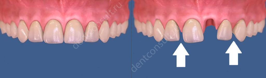 Смещение после удаления зуба