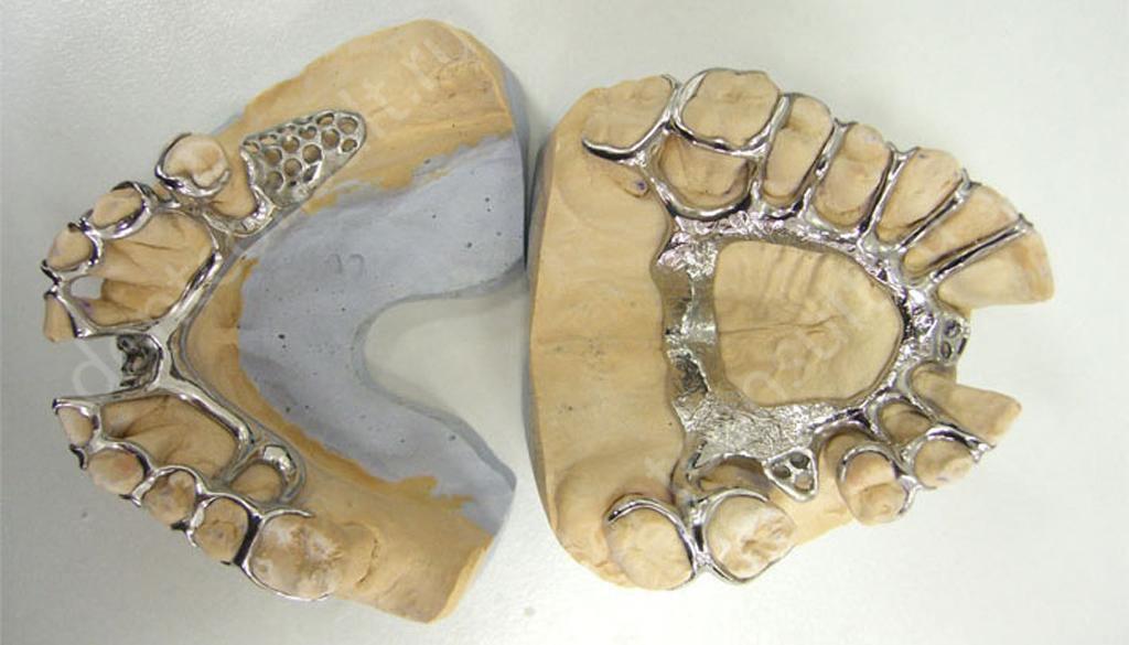 Бюгельные протезы