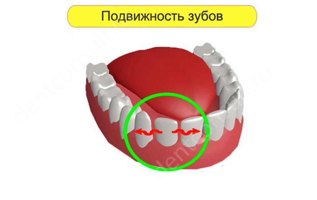 Почему зубы становятся подвижными