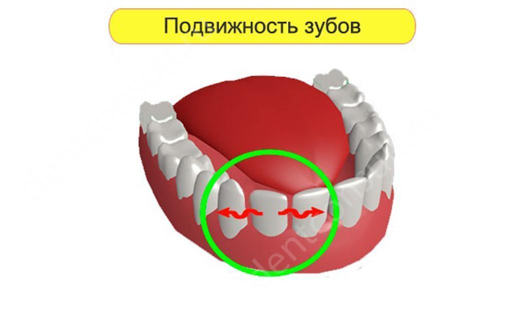 Что делать после удаления зубов мудрости: советы врачей