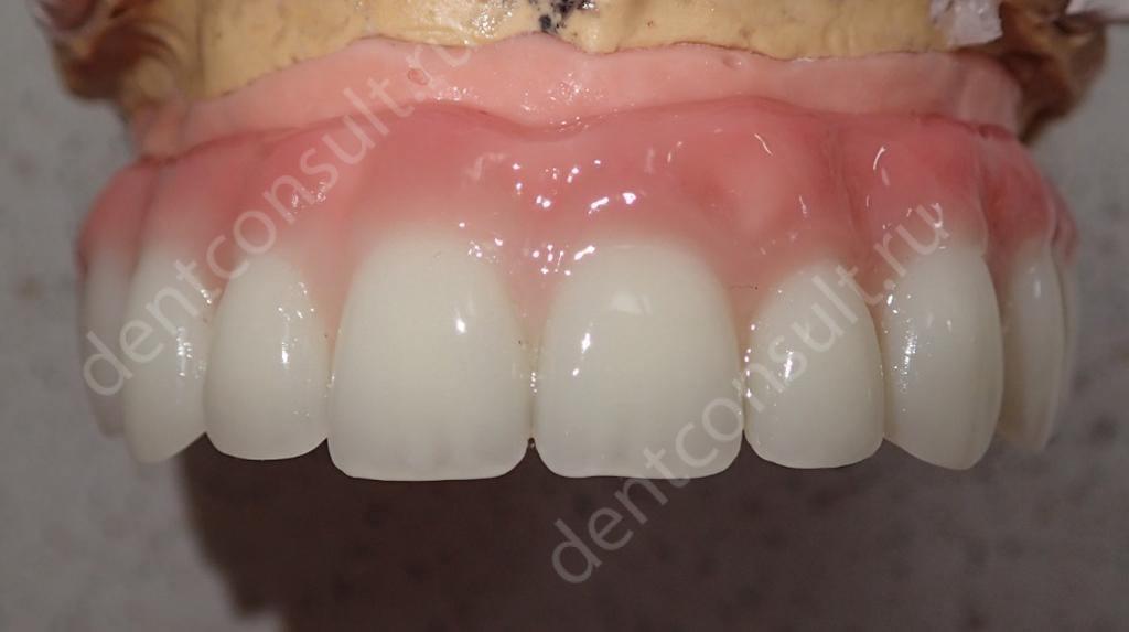 Как крепятся вставные зубы