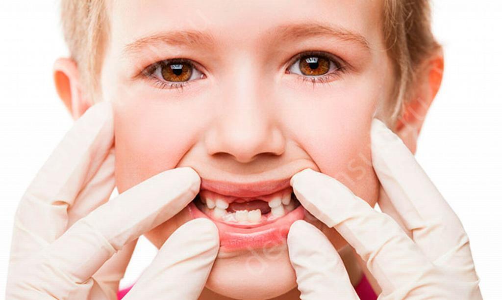 расшатаные зубы