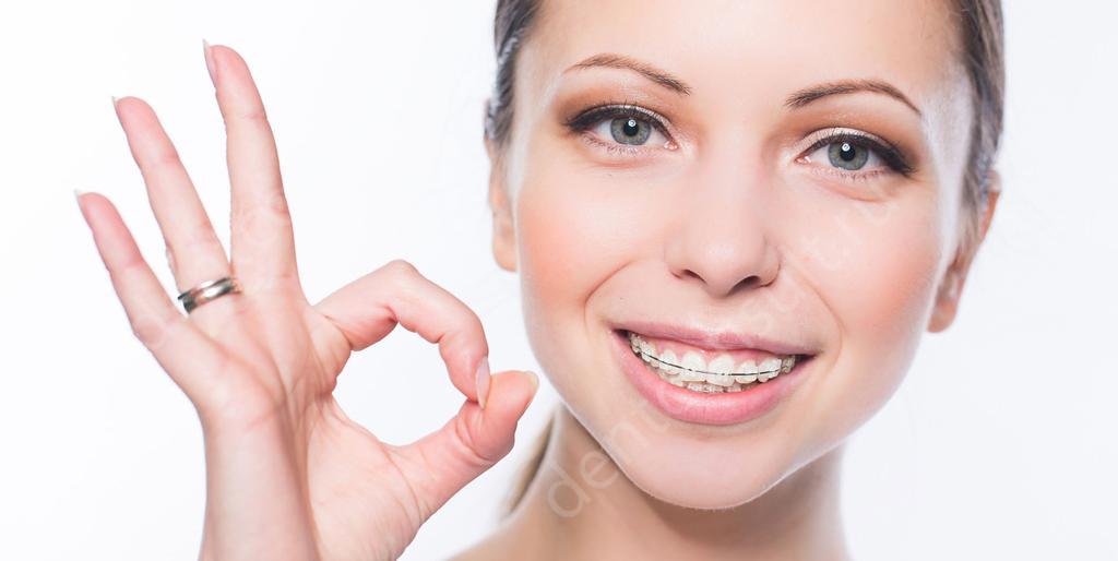 сколько стоят виниры на зубы в тамбове