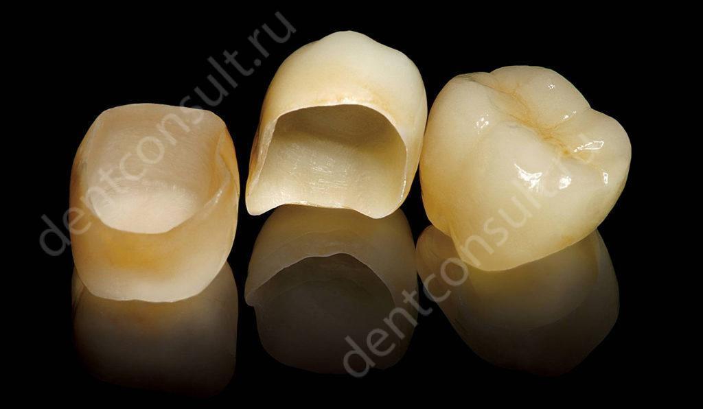 Мифы о зубных коронках: почему не стоит бояться их ставить