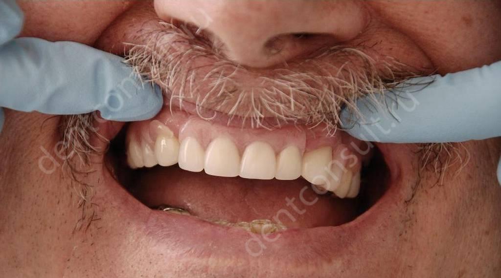Нейлоновые зубные протезы на зубах