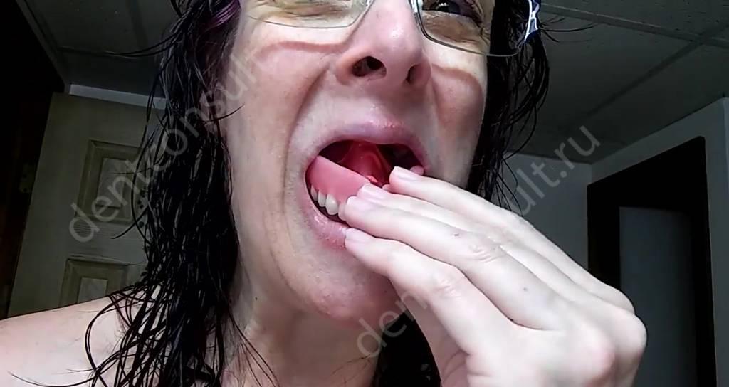 Одевание зубного протеза