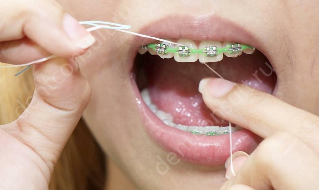 Зубная нить при брекетах