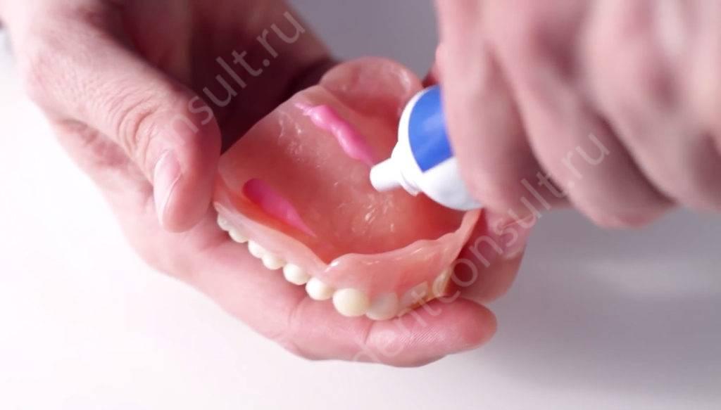 Как выбрать крем для фиксации зубных протезов