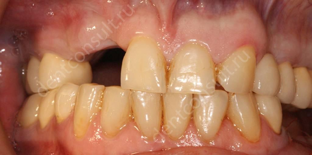 Отсутствие зубов - показание к применению временной конструкции