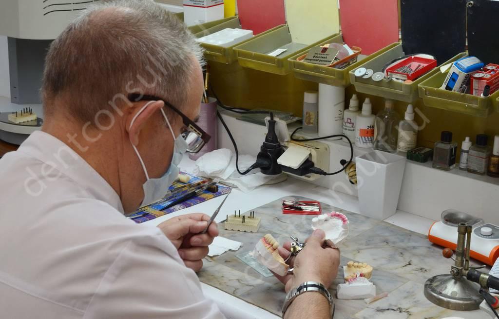 Изготовление протезов в зуботехнической лаборатории