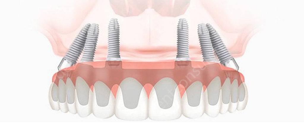 Имплантация зубов All-an-6
