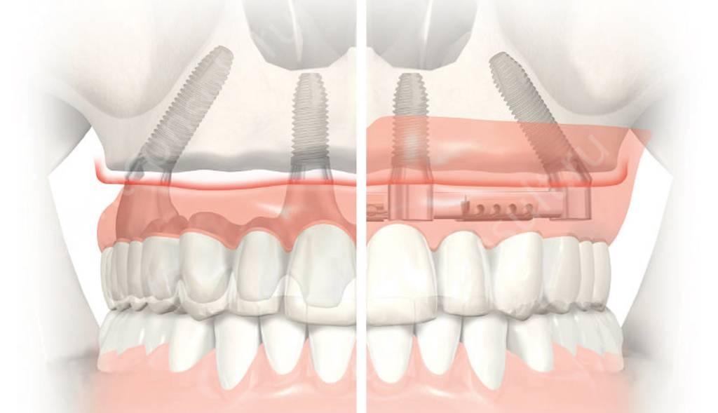 Виды крепления при имплантации all-on-4