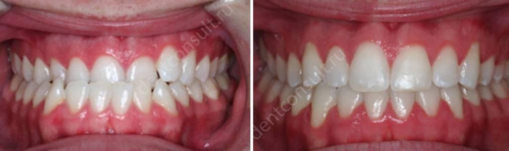 Фото до и после лечения мезиального прикуса