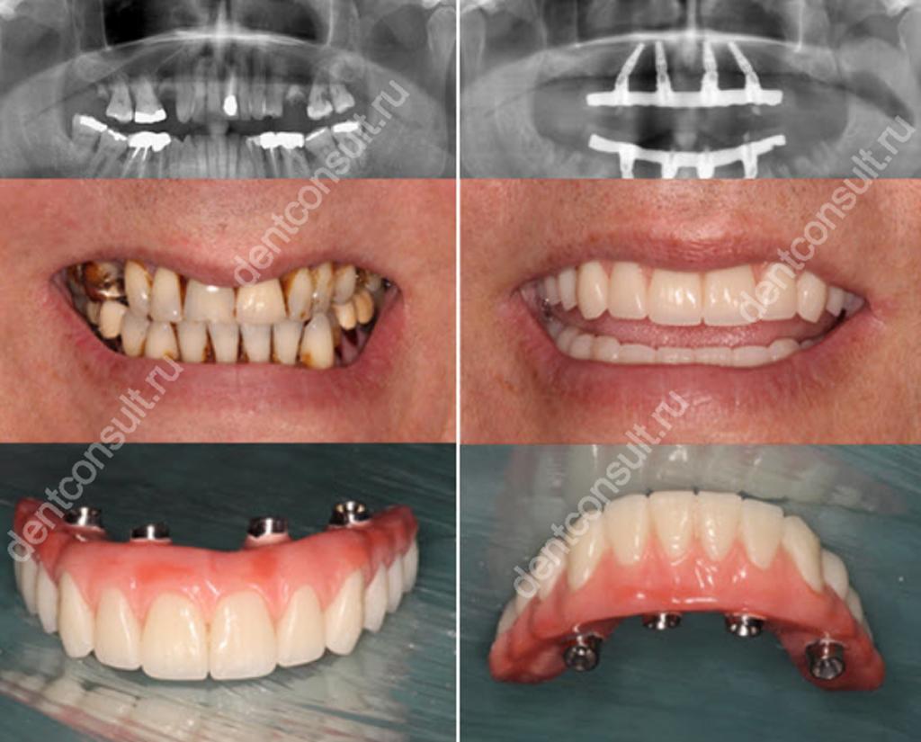 Фото: до и после имплантации All-on-4