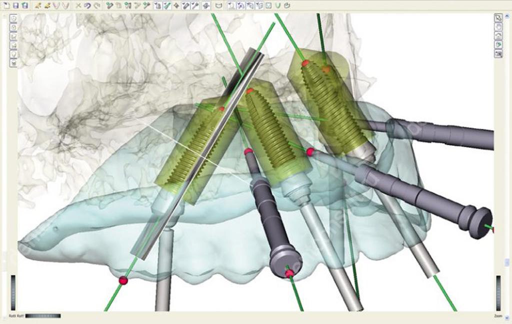 моделирование установки имплантов