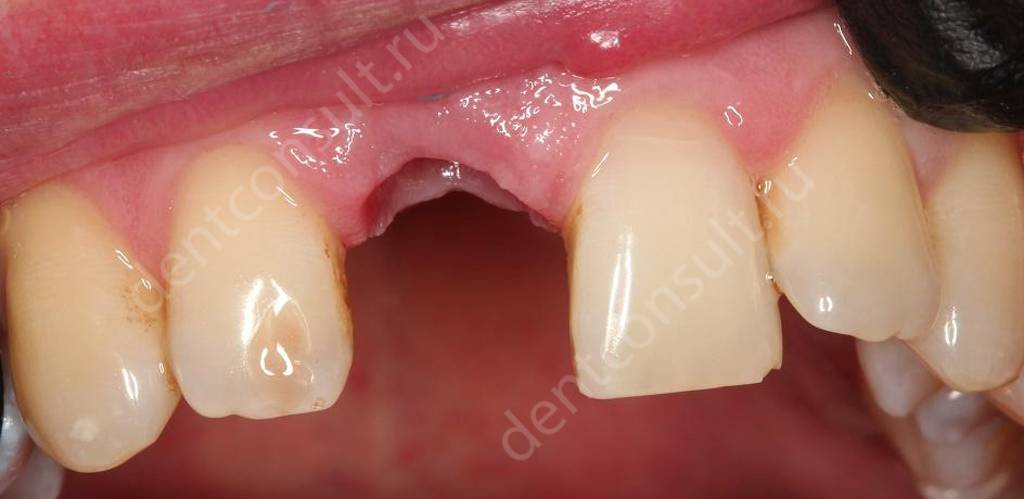 Опухоль после удаления зуба