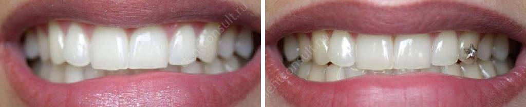 Фото до и после установки украшения